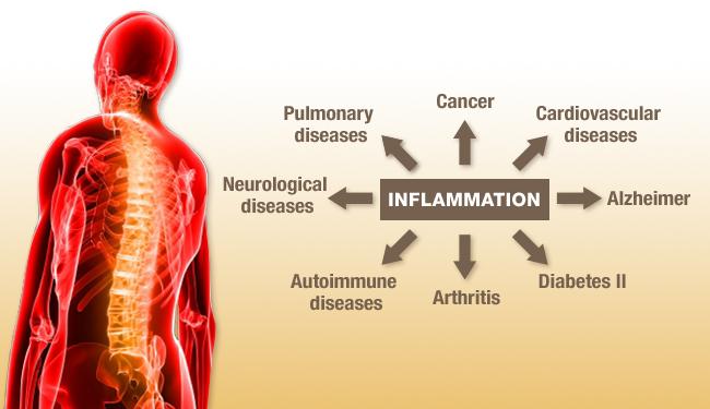 inflammation