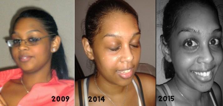 Evolutionface